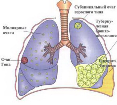 Новое лекарство от туберкулеза разработано специалистами из Африки